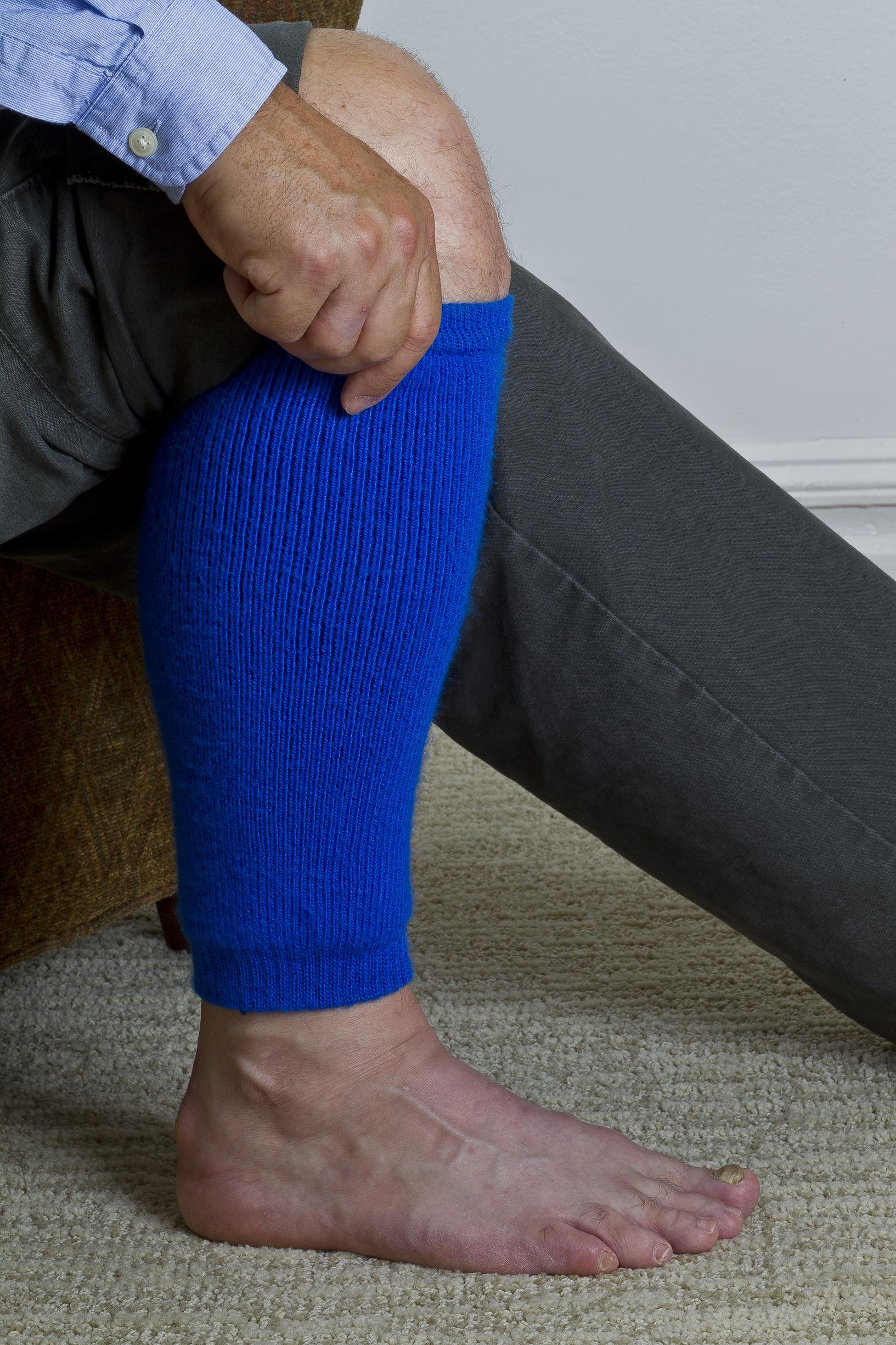 Thin Skin On Legs
